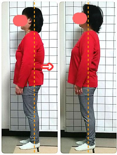 女性のための猫背・姿勢矯正専門カラダケア整体院 ビフォアアフター