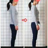 女性のための姿勢・猫背矯正 股関節痛と猫背がスッキリ! ビフォーアフター