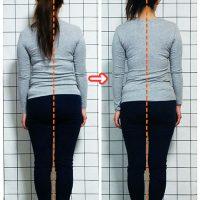 女性のための猫背矯正・姿勢矯正 ビフォーアフター