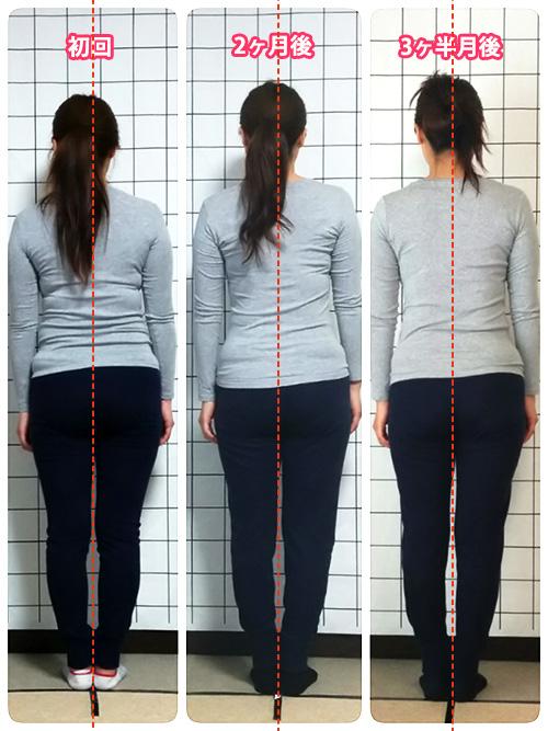 姿勢が変われば女性のカラダが変わる!姿勢改善プログラム Iさまのビフォーアフター