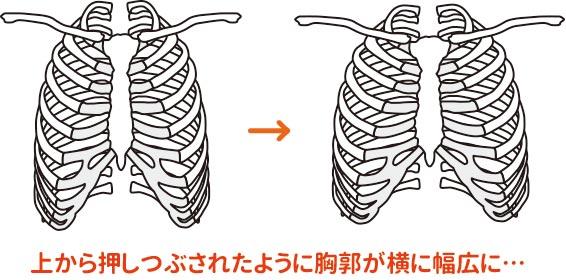 肋骨が歪むと横に幅広になります