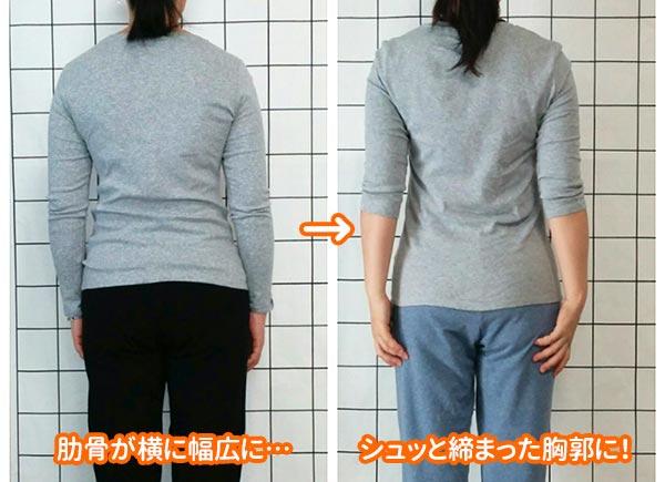 肋骨がキュッと締まるとこんなに変わります