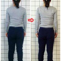 姿勢矯正に欠かせない肋骨矯正ビフォーアフター