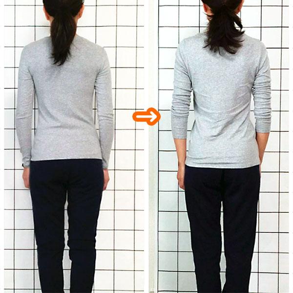 肋骨矯正で背中のラインが変化