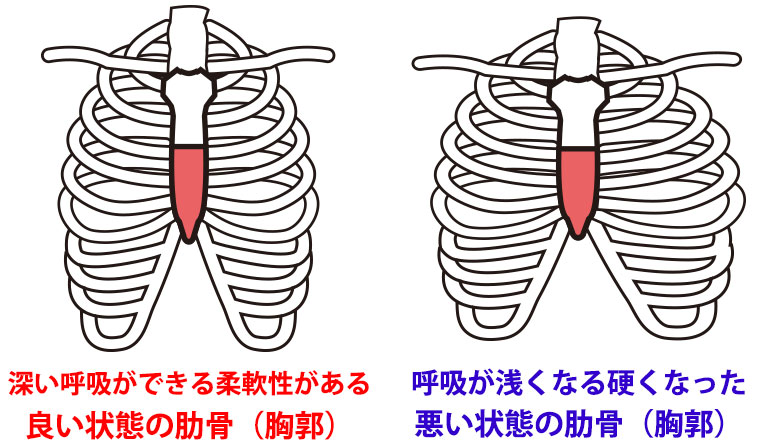 良い状態の肋骨・胸郭と歪んで呼吸の浅くなる悪い状態の肋骨・胸郭
