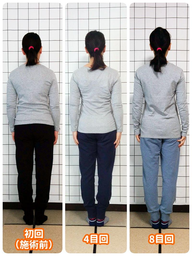 カラダケア整体院 姿勢矯正後の変化(後面)