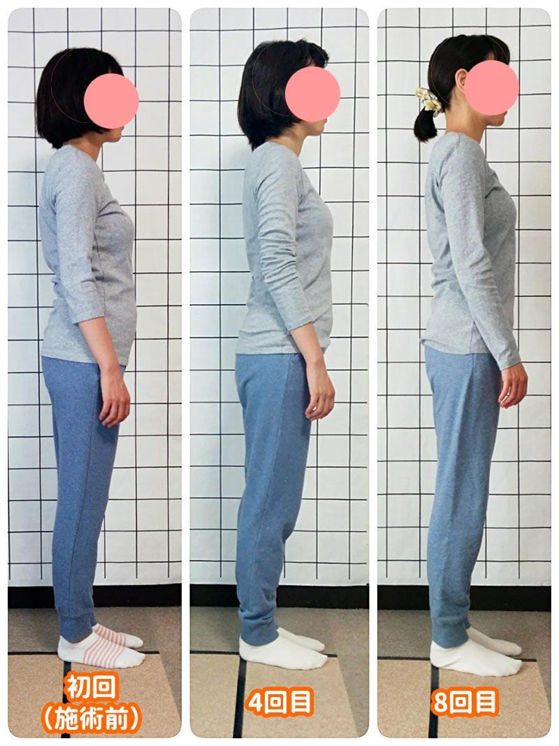 カラダケア整体院 姿勢矯正後の変化(側面)