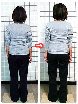 姿勢矯正後の変化