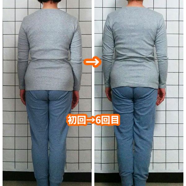 姿勢矯正の例