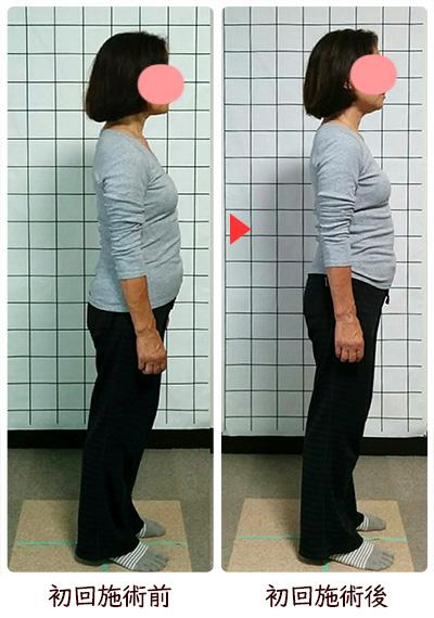 姿勢矯正・肋骨矯正・骨盤矯正・美ライン矯正後の変化