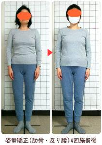 姿勢・反り腰・肋骨矯正後の変化